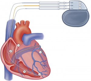 Surgical Treatment of Patients With Cardiac Cachexia: Results