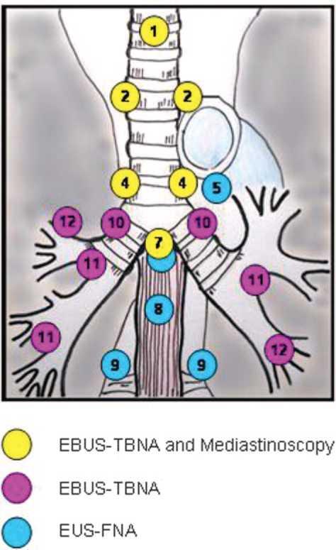 mediastinal lymph nodes